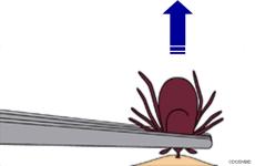 Tick Removal Display Image